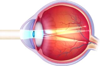O astigmatismo é o erro refrativo que distorce e torna nublada a visão a  qualquer distância. Grande número de casos de astigmatismo são congênitos  (se nasce ... a653699ec5