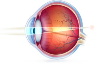 8ba6e00de A Presbiopia ou Vista Cansada é a perda natural e progressiva da capacidade  do olho em focalizar objetos perto. A vista cansada acontece normalmente a  ...