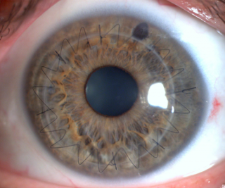http://www.jhonydepolo.com.br/site/wp-content/uploads/2016/12/transplante-de-cornea-jhony-de-polo-320x267.png
