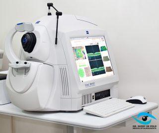 http://www.jhonydepolo.com.br/site/wp-content/uploads/2017/01/jhony-de-polo-tomografia-de-coerencia-optica-320x267.jpg