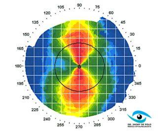 http://www.jhonydepolo.com.br/site/wp-content/uploads/2017/01/jhony-de-polo-topografia-de-cornea-320x267.jpg